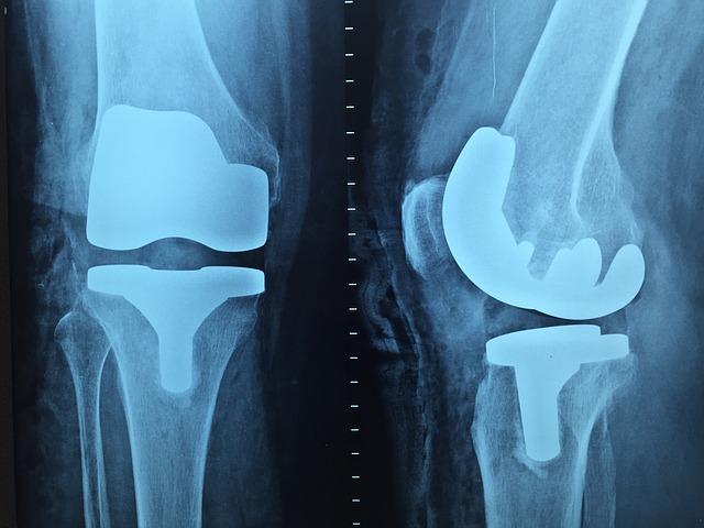 Woda w kolanie – jakie są objawy, co powoduje, czynniki ryzyka